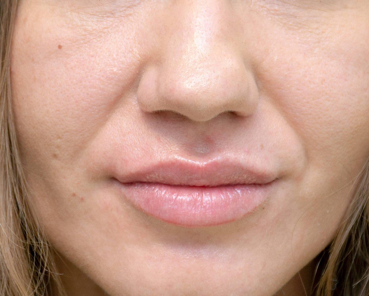 Rezultatul voluzarii buzelor cu acid hialuronic