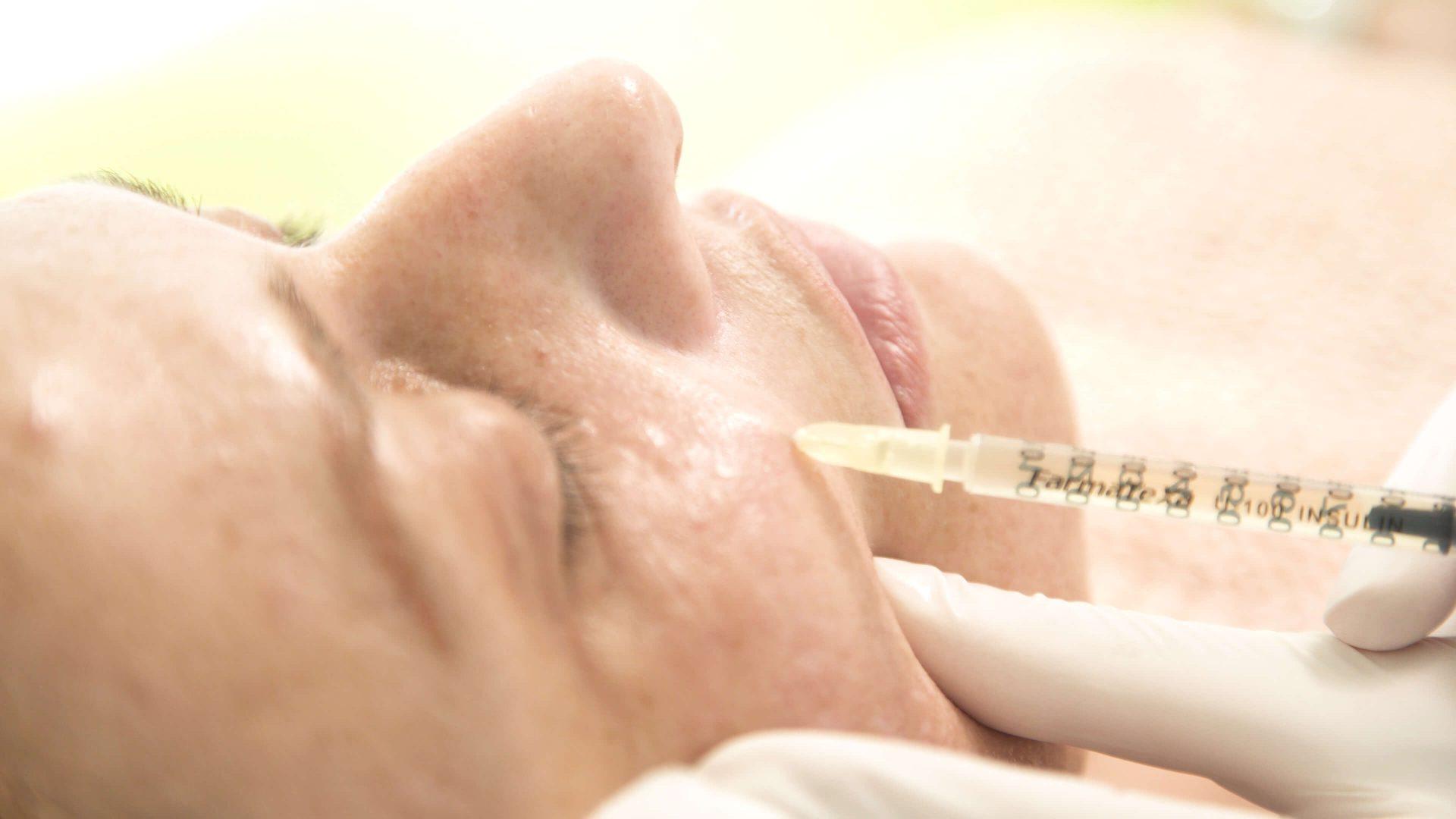 Clinica dermatologica ofera tratament PRP sau Terapia Vampir.